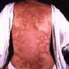 10 อันดับแรกโรคมะเร็งที่พบในคนไทย