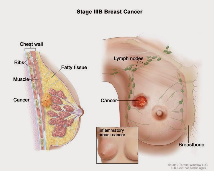 รู้ทันมะเร็ง : 7 สัญญาณมะเร็งเต้านม